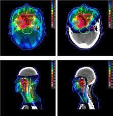 My Radiotherapy Album